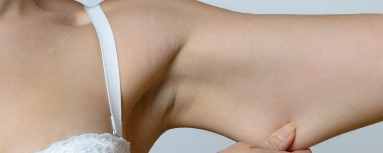 Fat Freezing Melbourne for Upper Arms
