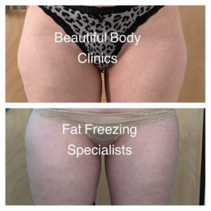 Fat Freezing Outer Thighs