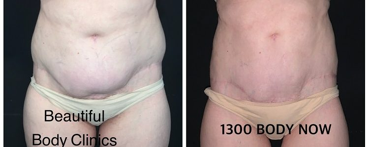 Fat Freezing After Tummy Tuck